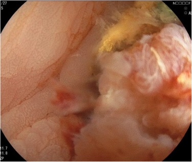 Colonic Ischemia Mimicking Obstruction Due To Sigmoid Colon Cancer A Case Report Sciencedirect