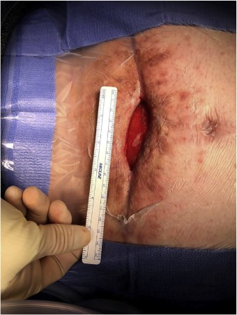 Management of chronic abdominal wall seroma with Doxycycline