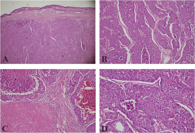 Large Single Cutaneous Metastasis Of Colon Adenocarcinoma Mimicking A Squamous Cell Carcinoma Of The Skin A Case Report Sciencedirect