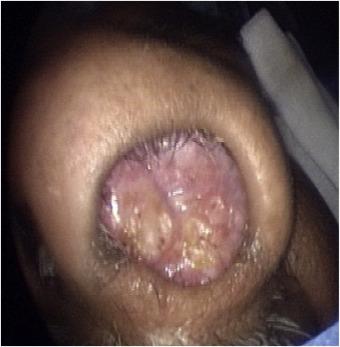 papillomas nostril