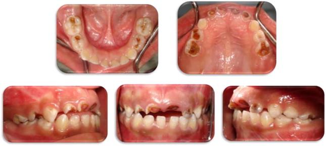 Dental management of a patient with progressive familial