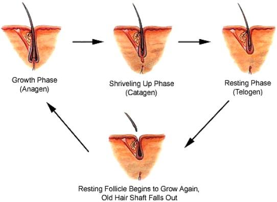 Alopecia areata: A review - ScienceDirect