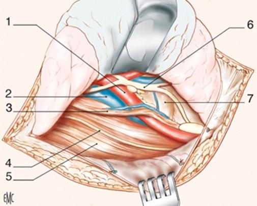 Acceso al raquis lumbar y a la charnela lumbosacra - ScienceDirect