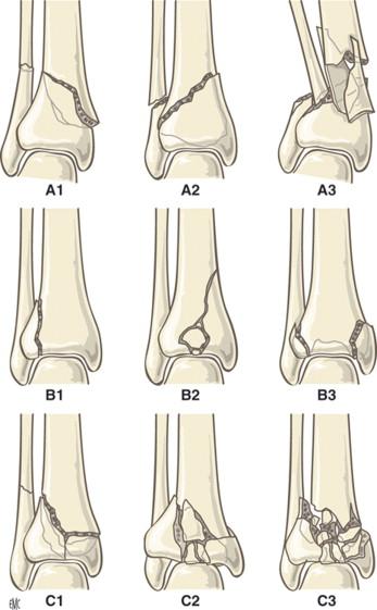 Fracturas del pilón tibial - ScienceDirect
