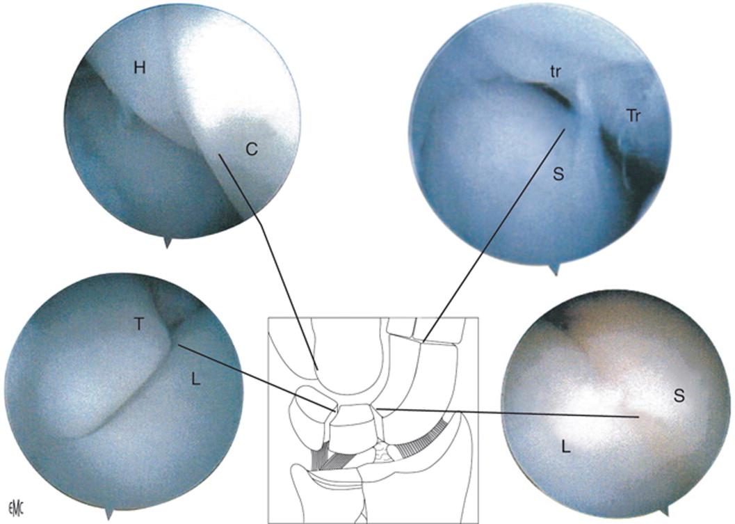 Artroscopia de muñeca. Técnica, características normales - ScienceDirect