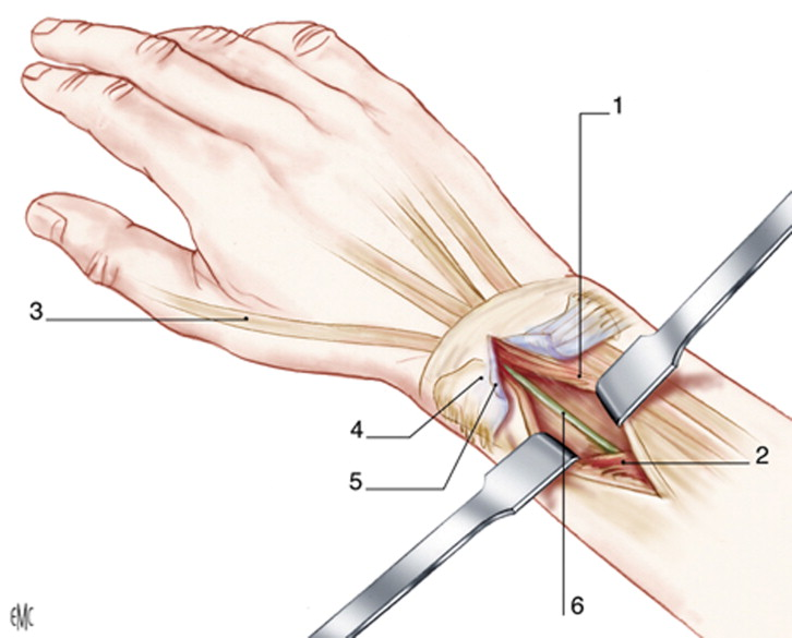 Tratamiento de las fracturas antiguas del extremo distal de los dos ...