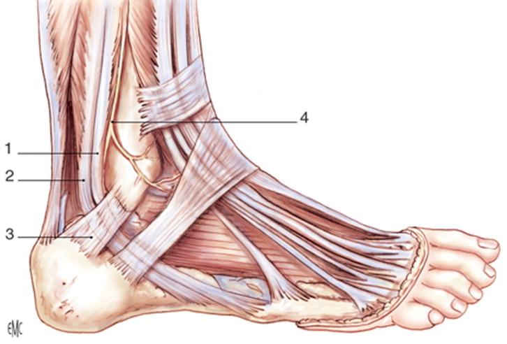 Luxación de los tendones peroneos - ScienceDirect