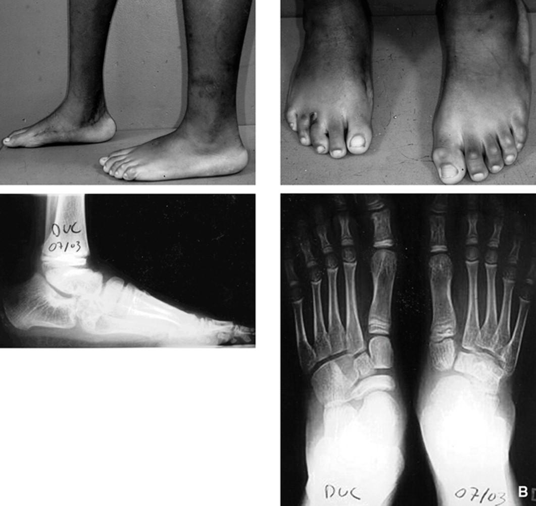 Osteotomías del tarso - ScienceDirect