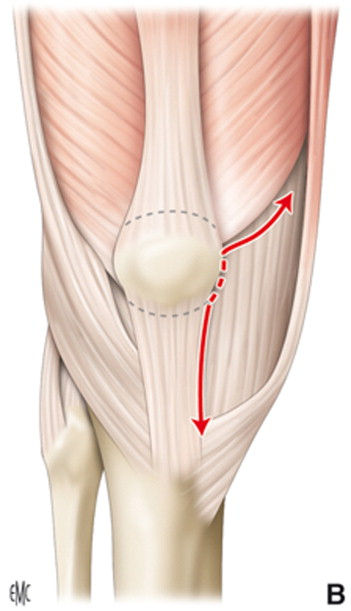 Fundamentos técnicos de la prótesis tricompartimental de rodilla ...
