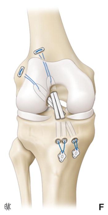 Tratamiento quirúrgico de las lesiones del ligamento cruzado ...