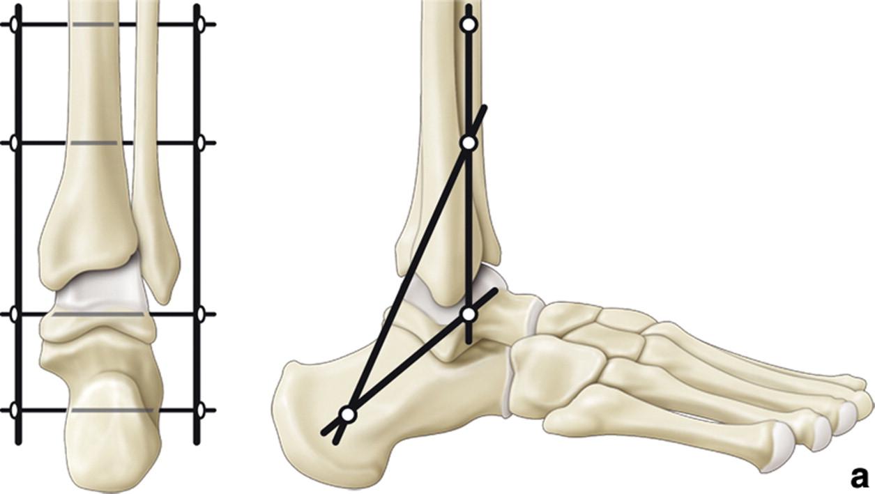 articulatia tibio astragalina deteriorarea băncii articulațiilor umărului