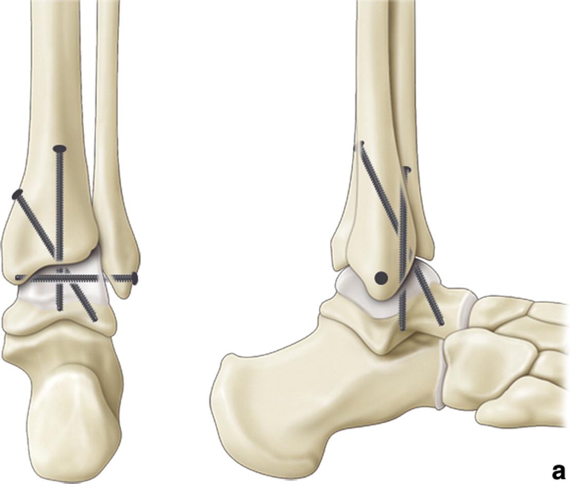 Protezarea micilor articulaţii. Protezarea piciorului