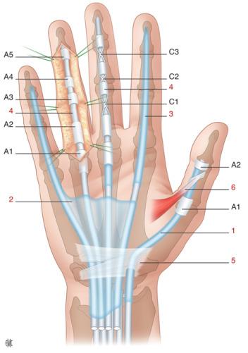 Sinovectomía de los extensores y de los flexores de la mano y de la ...
