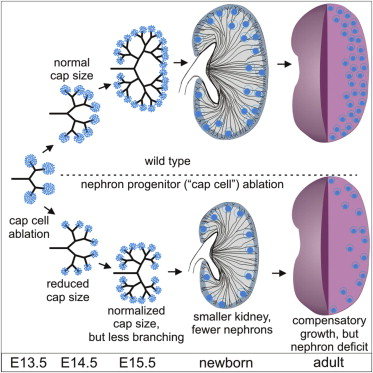 The Number Of Fetal Nephron Progenitor Cells Limits Ureteric