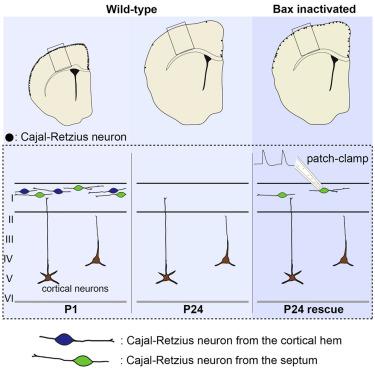 Cajal–Retzius cell