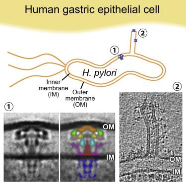 helicobacter pylori cag
