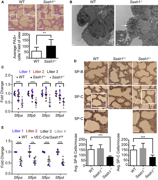 Endothelial Sash1 Is Required for Lung Maturation through Nitric