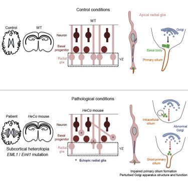 Mutations in the Heterotopia Gene Eml1/EML1 Severely Disrupt