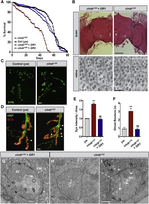 cindr, the Drosophila Homolog of the CD2AP Alzheimer's