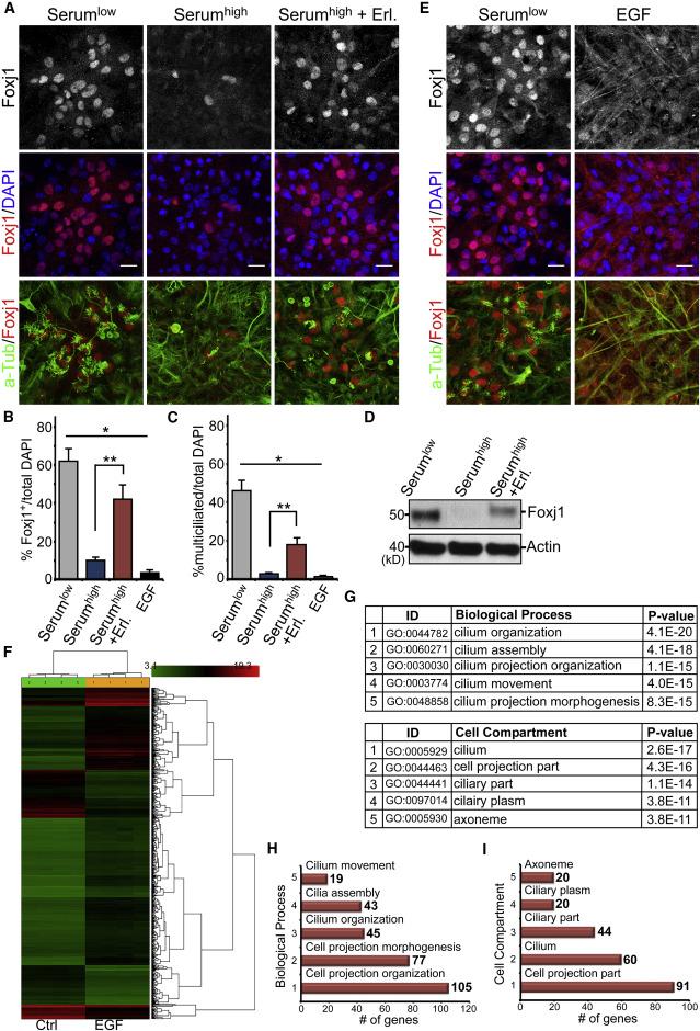 EGFR Signaling Termination via Numb Trafficking in Ependymal