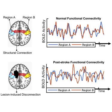 Structural Disconnections Explain Brain Network Dysfunction