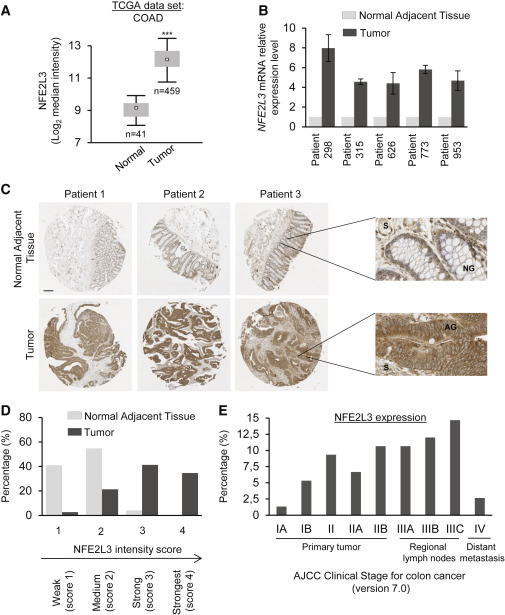 Nfe2l3 Controls Colon Cancer Cell Growth Through Regulation Of Dux4 A Cdk1 Inhibitor Sciencedirect