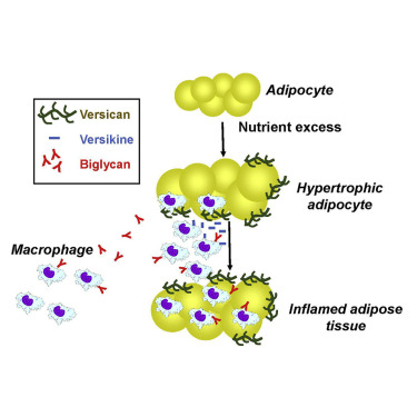 Adipocyte Derived Versican And Macrophage Derived Biglycan Control Adipose Tissue Inflammation In Obesity Sciencedirect