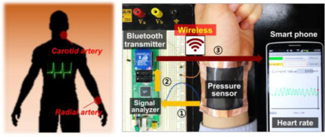 Highly Sensitive Wearable And Wireless Pressure Sensor Using Free Standing Zno Nanoneedle Pvdf Hybrid Thin Film For Heart Rate Monitoring Sciencedirect