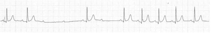 Ventricular standstill strips