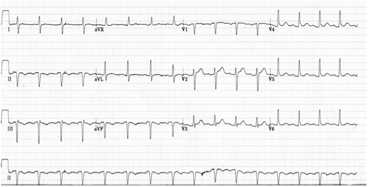 ECG lead misplacement: A brief review of limb lead