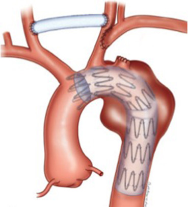 Republication de : Les syndromes aortiques aigus - ScienceDirect