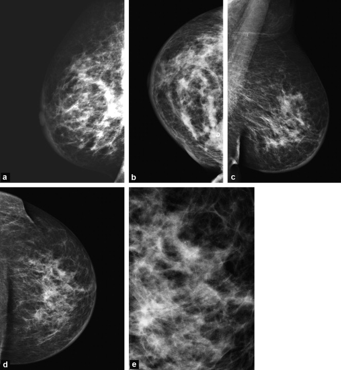 Imaging Inflammatory Breast Cancer Sciencedirect