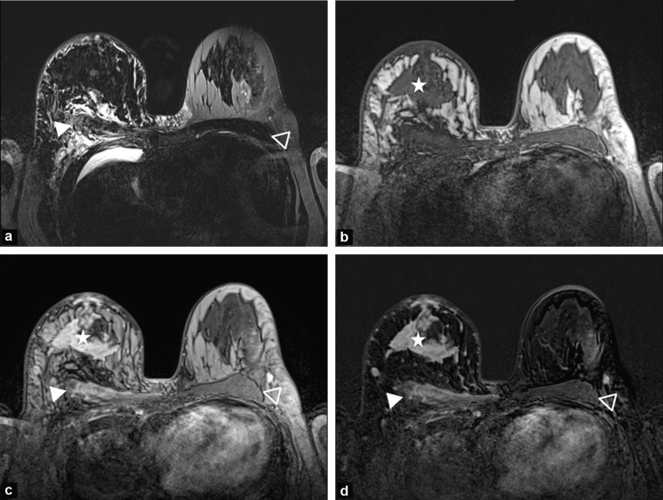 Breast Inflammation Indications For Mri And Pet Ct Sciencedirect