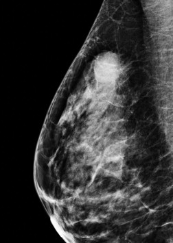 Radiological Features Of Triple Negative Breast Cancers 73 Cases