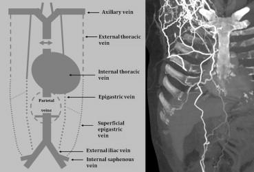 superior vena cava szindróma fogyás