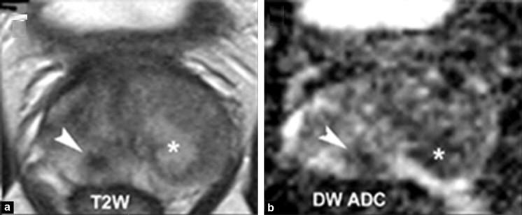 acute prostatitis mri findings