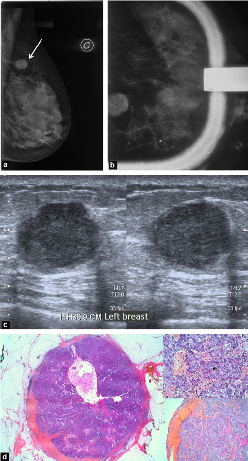Breast Cancers With Round Lumps Correlations Between Imaging And Anatomopathology Sciencedirect