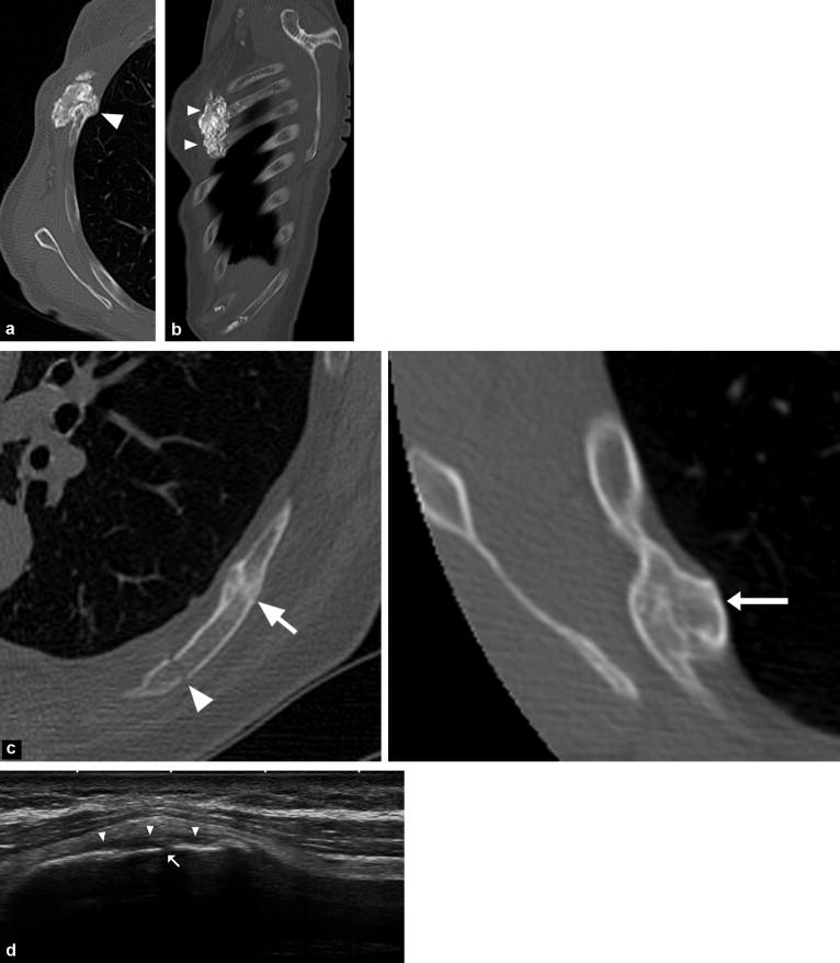 Tumors of the rib - ScienceDirect