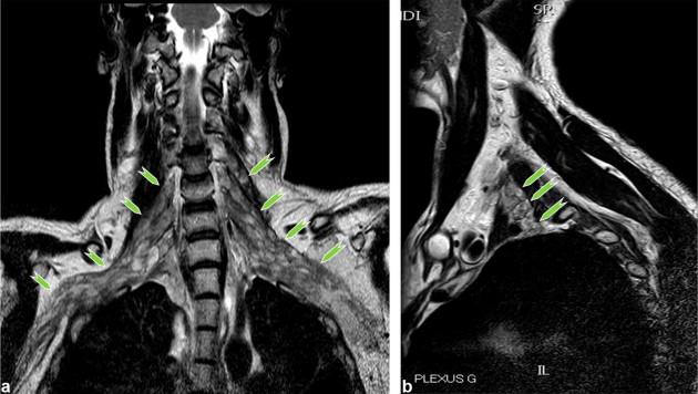 Imaging of the non-traumatic brachial plexus - ScienceDirect