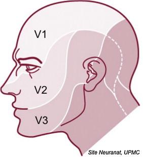 Trigeminal neuralgia - ScienceDirect