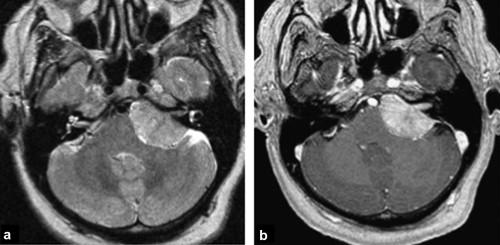 The vestibulocochlear nerve (VIII) - ScienceDirect