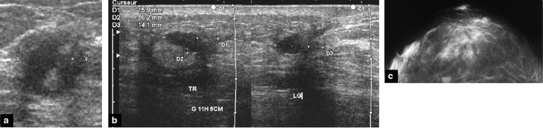 Complex Cystic Breast Masses In Ultrasound Examination Sciencedirect
