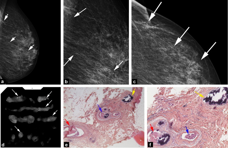 Breast Microcalcifications The Lesions In Anatomical Pathology