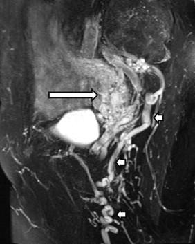 pelvic venous congestion radiology