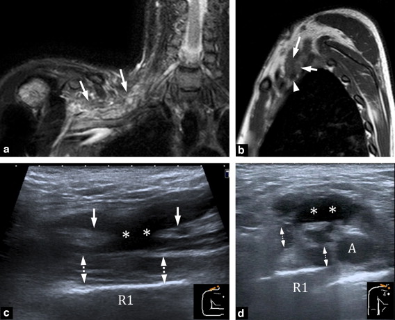 Ultrasonography of the brachial plexus, normal appearance and ...
