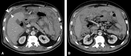 CT of the Peritoneum (Medical Radiology)