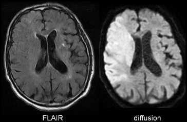 Imaging in the acute setting of suspected stroke is an important topic to all...