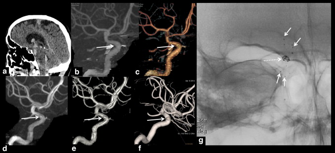 Non Invasive Diagnosis Of Intracranial Aneurysms Sciencedirect