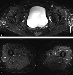 Eosinophilic Fasciitis Typical Abnormalities Variants And