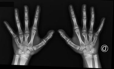 Broad terminal phalanx thumb